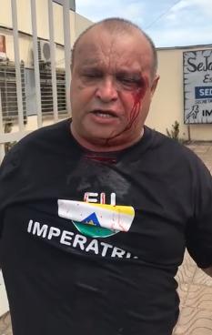 Coronel: Radialista sofre agressões do prefeito de Imperatriz