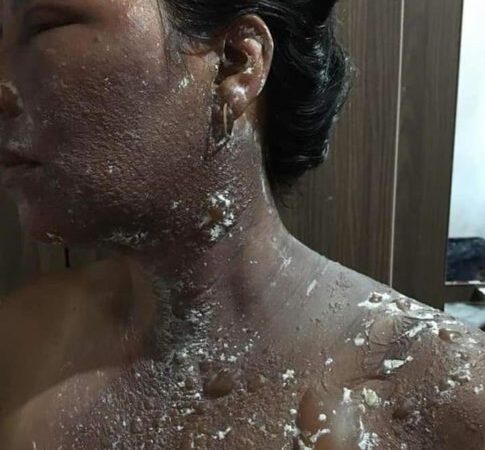 Maranhão: Alegando que estava sendo traído, homem joga água quente no rosto da mulher